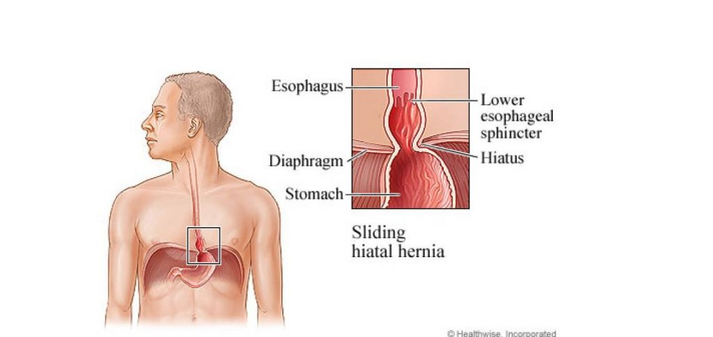 Signs Of Hiatal Hernia And Treatment
