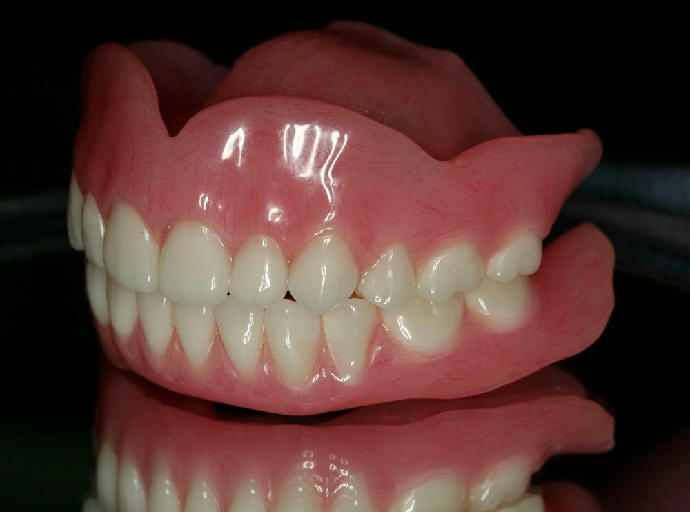 The secret To All On Dental Implants In Mexico Is Revealed